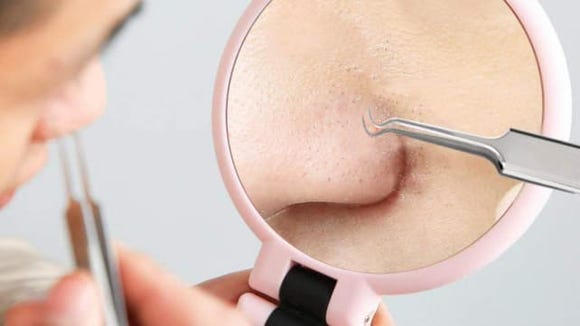 Blackheads? Get rid of 'em easy with this kit.