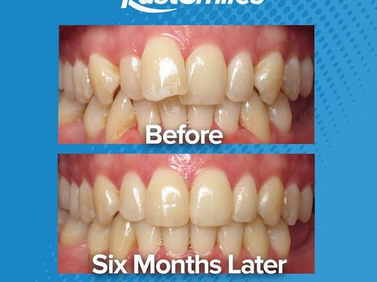 A Simply Fast Smile promotional image that shows a patients' experience of using Dr. John Nista's program.