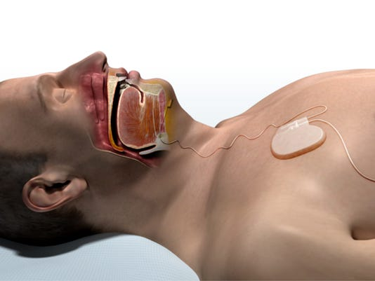 635905422879564550-INSPIRE-Open-Airway-with-Inspire-Therapy.jpg