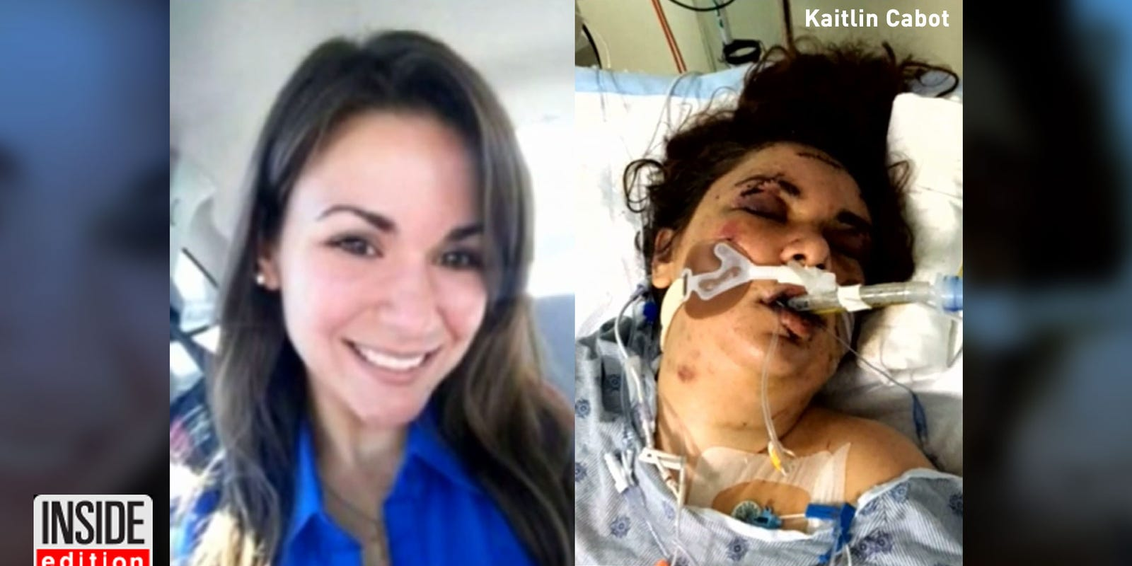 Woman Allegedly Attack By Craigslist Roommate May Never See Again