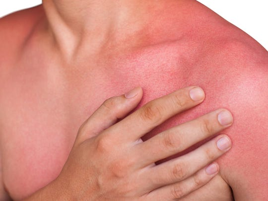 Once sunburn occurs, you can't do much to limit damage