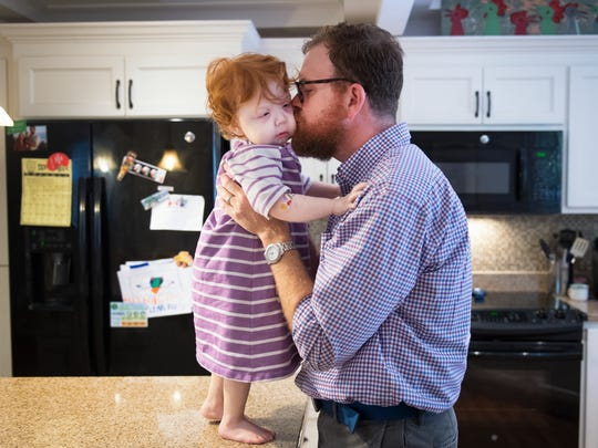 Drew Duffey kisses his daughter, Katie, 2, in their home in Greenville on Saturday, September 23, 2017. Drew will be donating his kidney to Katie, who has congenital nephrotic syndrome, next week.