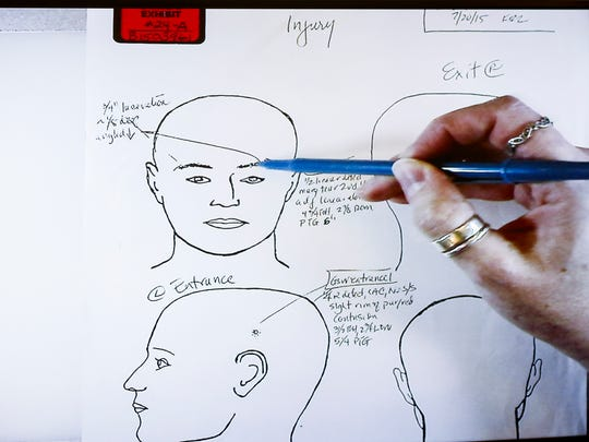 Dr. Karen Looman, chief deputy coroner and forensic pathologist at the Hamilton County Coroner's office, shows drawings from Sam Dubose's autopsy, during her testimony on the fifth day of Tensing's retrial in Hamilton County Common Pleas Judge Leslie Ghiz's courtroom Wednesday, June 14, 2017, in Cincinnati. Tensing, the former University of Cincinnati police officer, is charged with murder in the death of Sam DuBose, during a routine traffic stop on July 19, 2015. Tensing's lawyer, Stew Mathews, has said Tensing fired a single shot.