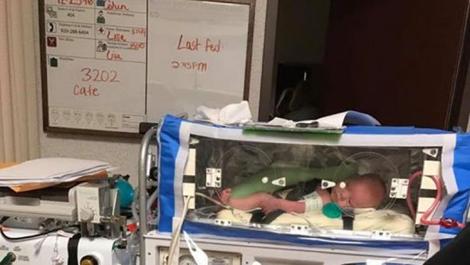 Lynk Kimmel of Kellnersville was born last October with tracheomalacia, a rare congenital condition in which the cartilage that supports the trachea is soft, and basically collapses when the baby breathes in air. The condition has been linked to other possible issues with his heart or kidneys.