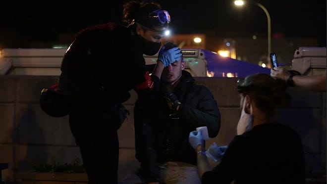 A protestor receives care after being struck in the face by an object on the Court Street bridge on Friday.