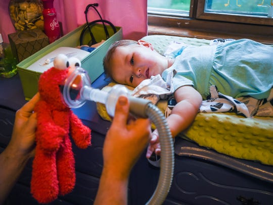 Anton Kliewer shows his daughter Elke how he places a mask on her stuffed Elmo before using the mask on her at their home, Wednesday, Aug. 8, in Fort Collins. The machine fills Elke's lungs with air before drawing air and mucous out. Due to Elke's inability to cough, they use the machine twice a day and much more when Elke's sick.