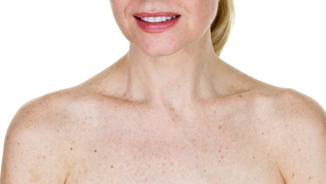 Seborrheic keratoses are among the most common types of benign and malignant skin growths in the field of dermatology.