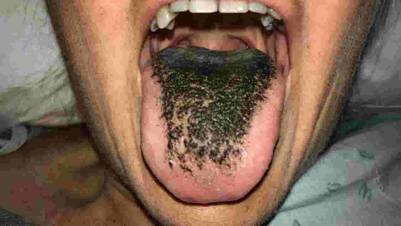 Accident On 10 >> Woman suffers from 'black hairy tongue' after car accident
