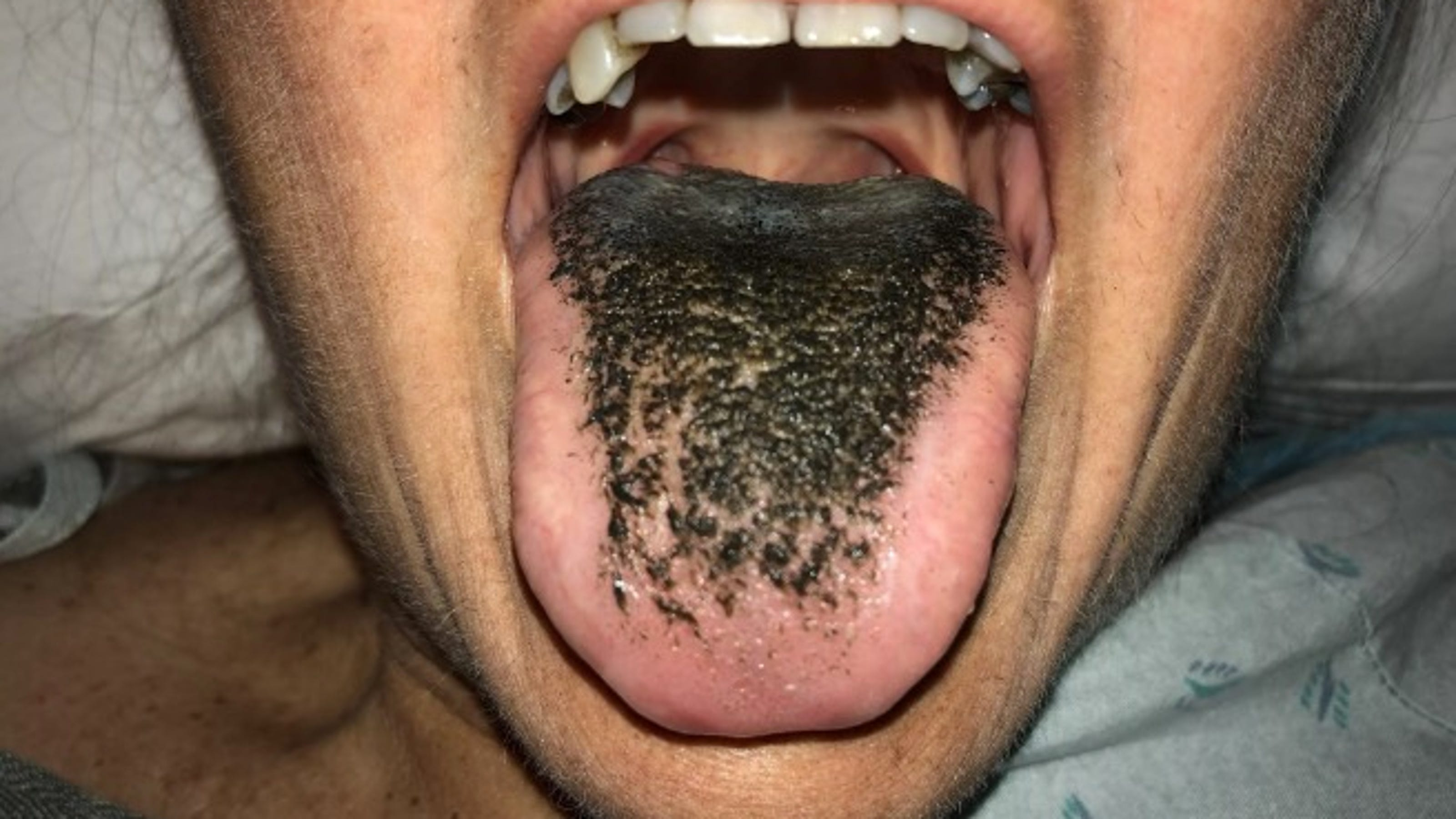 Woman suffers from 'black hairy tongue' after car accident