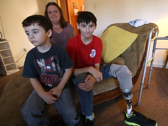 Jaxon Ronsonet wears his artificial leg at home with his mother, Tiffany Ronsonet, and brother Bentley Fonton, in Biloxi. Ronsonet lost his left leg due to a pit bull attack.
