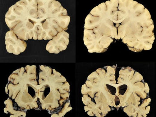 This combination of photos shows sections from a normal brain, top, and from the brain of former University of Texas football player Greg Ploetz, bottom, in stage IV of chronic traumatic encephalopathy.