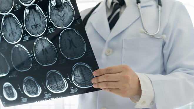 Doctors look for stroke risks such as buildup in the arteries that carry blood to the brain.