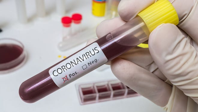 Mountain Home physicians share their thoughts on the COVID-19 outbreak and what area residents can do to protect themselves and others.