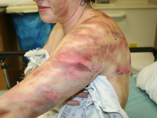 In 2013, Alesha Meyers was the victim of a four-day attack by her husband. Police photographs document the effects.