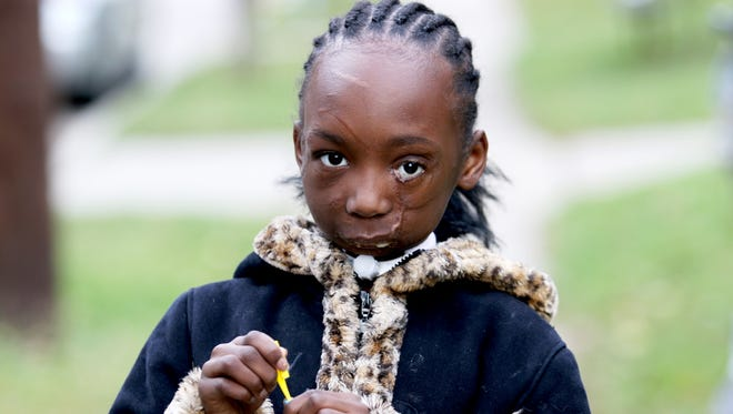Zainabou Drame, 7, outside her East Price Hill home Wednesday Nov. 11, 2015. Zainabou has undergone at least a dozen surgeries since being mauled last year by two pit bulls in Westwood in June 2014. Doctors say she will never be able to eat again, she is fed through a feeding tube and will have multiple facial reconstruction surgeries during her life.