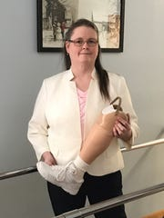 Catherine Trenchard is president and certified prosthetist at Cayuga Orthotics & Prosthetics in Rochester.