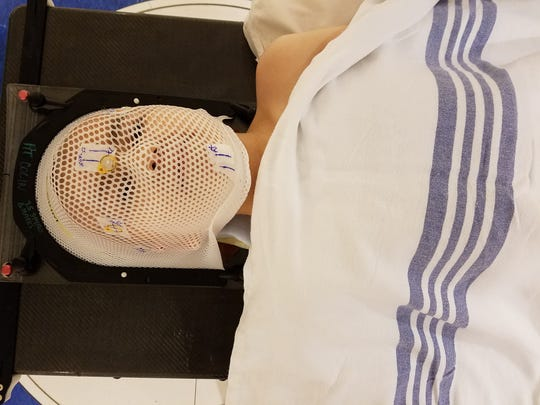 Colin waits to undergo a photon radiation treatment of his whole head and spine, on June 28 at St. Jude Hospital in Memphis. The mesh mask helps aim the radiation and stabilize his head during the treatment.