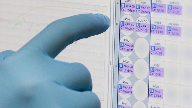 A medical researcher uses a monitor that shows the results of blood tests for various diseases, including Zika, at the Gorgas Memorial laboratory in Panama City, Panama.