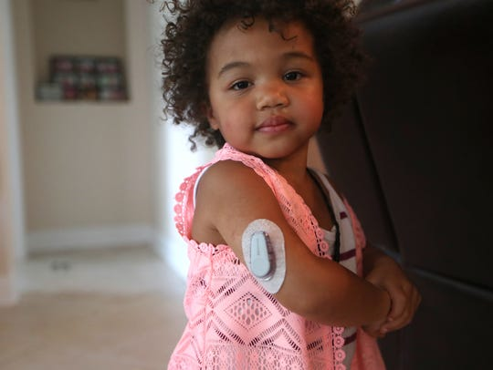 Leah Joseph, 2, with her Dexcom G6 patch which monitors