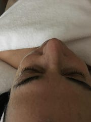 The microcurrent gently lifts, tightens and tones. In this photo, only the right side of Linda Freeman's face has been treated.