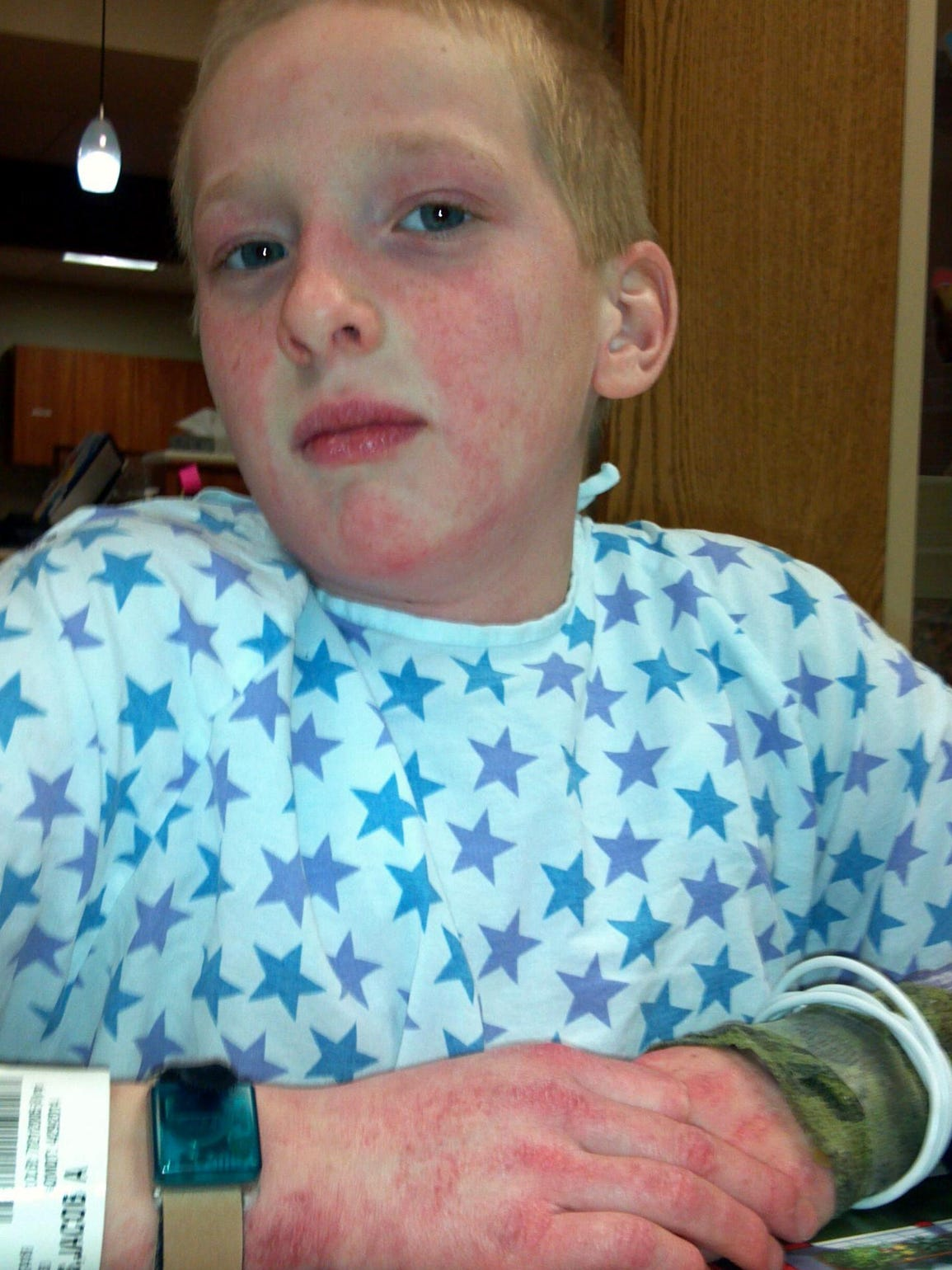 Jacob Reeves is shown in the hospital while being treated