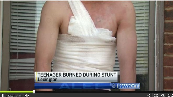 """I just poured alcohol on it, and lit it, and it just automatically went and burst,"" the teenager, who suffered second-degree burns, told WKYT-TV."