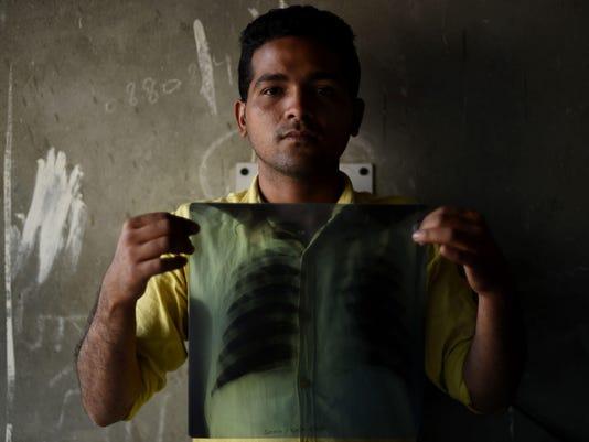 INDIA-HEALTH-DISEASE-TUBERCULOSIS