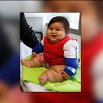 Eight-month-old Santiago Mendoza at a clinic in Bogota, Colombia, Tuesday, March 18, 2014.