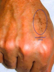 """AFTER: """"The Hand Lift"""" is a unique procedure that transforms"""