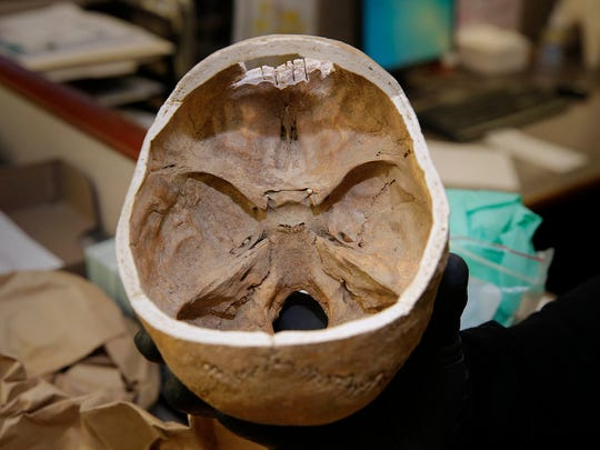 Forensic experts removed the top from a skull found in Wauwatosa in order to more closely examine it. The age of the skull, believed to be from a female, remains unknown. It's now back in storage at the Milwaukee County medical examiner's office.