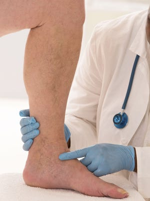 Lower limb vascular examination.