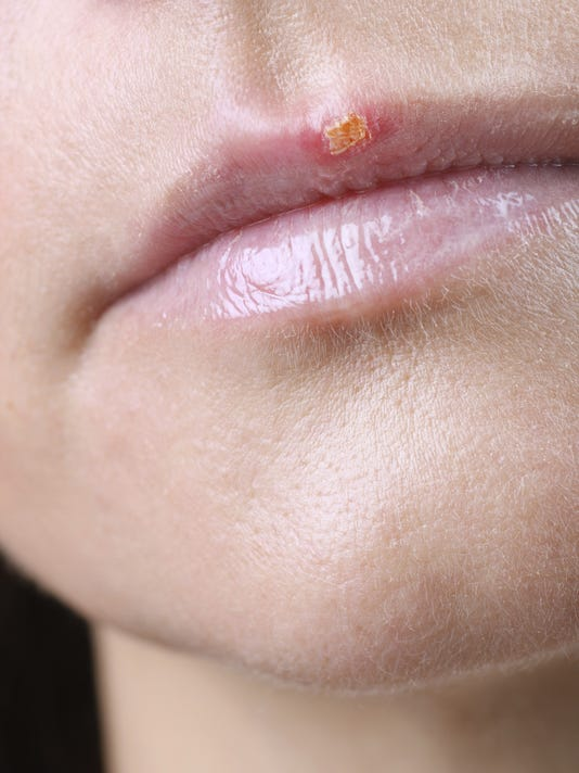 Winter weather a trigger for cold sores