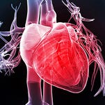 A free heart screening is planned for March 5.