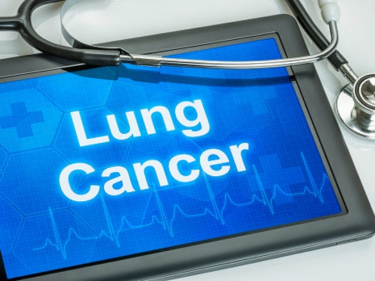 The major risk factor for developing lung cancer: Smoking, followed by exposure to second hand smoke.