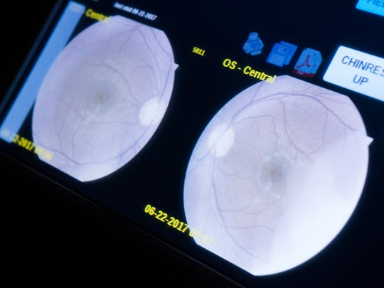 The IRIS retinal scanner creates details images of