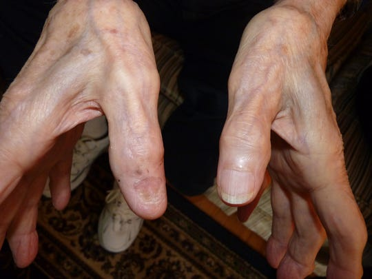 Frank Maltese Sr.'s right thumb is disfigured from an injury he suffered during World War II.