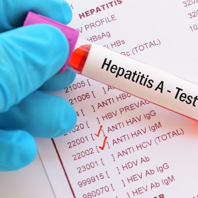 Hepatitis A outbreak infects 14 in Nashville; vaccines advised for gay men, drug users