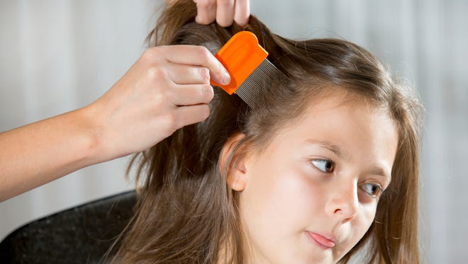 The American Academy of Pediatrics updated its lice-management guidelines in a new report.