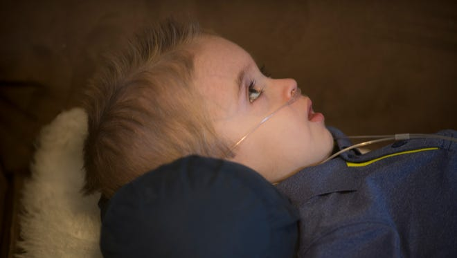 Porter Heatherly, who is nearly 3 years old, has a rare condition called GM1 gangliosidosis, type 1, an inherited disorder that progressively destroys nerve cells in the brain and spinal cord and causes multiple seizures each day.