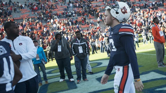 Sean White is injured but may return as the starting quarterback for Auburn on Saturday.