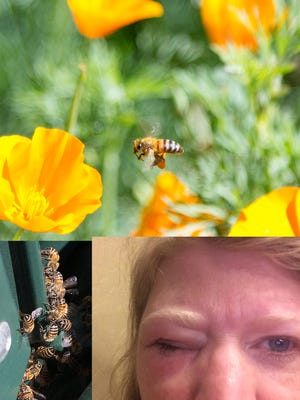 Arizona Republic photographer Cheryl Evans' eye swells up after being stung on a bee removal assignment in Mesa.