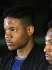 Virginia student Martese Johnson was on hand as fellow