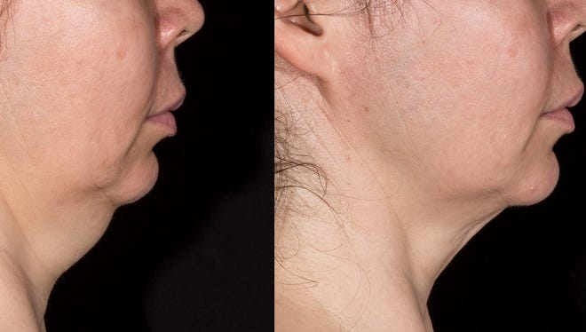 "Several procedures can now be done to do away with what many people call ""turkey neck."""