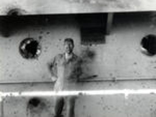 SSgt. Bryce Lockwood after he was burned in the attack
