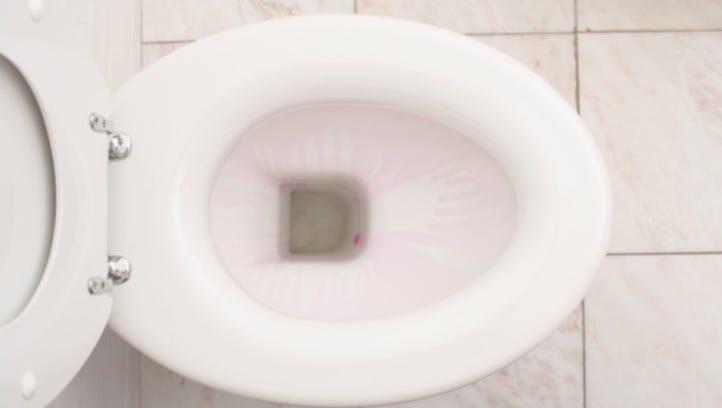 Bottled-up Sheboygan park toilets a growing headache