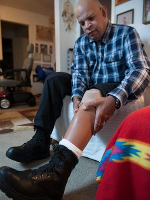 Jackie Bell, 57, goes to dialysis three days a week, but is often late and has missed appointments due to problems with Logisticare, the state-funded medical transportation company that's supposed to get patients to appointments.