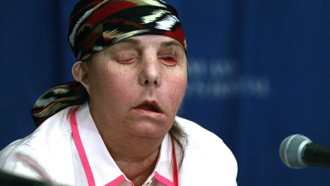 Carmen Blandin Tarleton speaks at Brigham and Women's Hospital in Boston in 2013 following a face transplant.