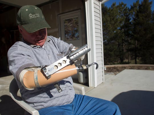 Rick Stockman attaches a golfing accessory to one of his prosthetic arms at his home in Oxford on Tuesday, March 31, 2015. Stockman lost both his arms in a farming accident nearly 30 years ago and has used two prosthetics since then.