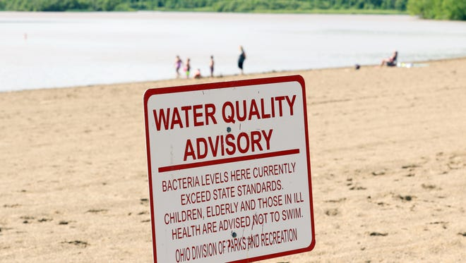 A sign warns of high bacteria levels in Dillon Lake at Dillon State Park near Zanesville. Bacteria levels fluctuate during the summer months.