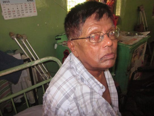 Abdul Hassaan, 59, lives at the Hendala Leprosy Hospital